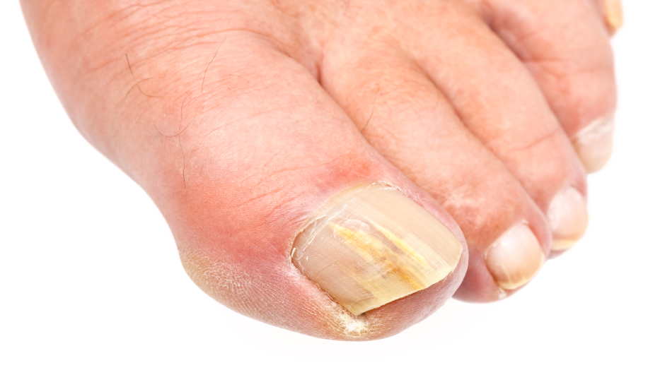 How Restore Vitality to Your Yellow Toenails