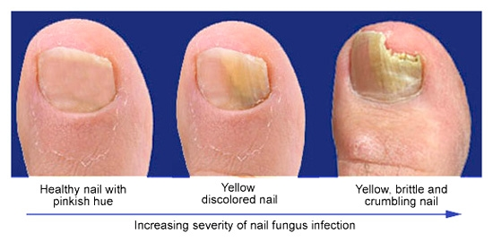 Nail Fungus Statistics: Here's What You Need to Know