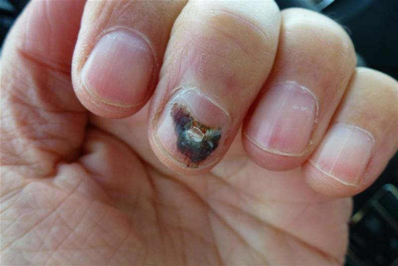 Will nails grow back after fingernail fungus?